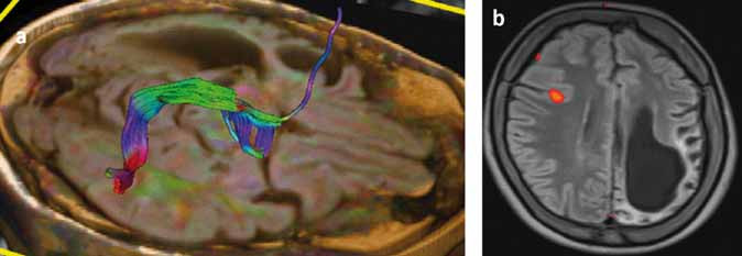 Traktografia fasciculus arcuatus (DTI) a rečová funkčná magnetická rezonancia (fMR) u pacientky s Rasmussenovou encefalitídou a s atrofiou ľavej nedominantnej hemisféry. Obr. 4a) DTI – fasciculus arcuatus v pravej hemisfére. Obr. 4b) fMR – rečová aktivácia v oblasti frontálneho operkula vpravo. Pozn. Prezentované so súhlasom Rádiologickej kliniky LFUK,SZU a UNB, Bratislava. Fig. 4. Tractography (DTI MRI) of arcuate fascicle and functional MRI (fMRI) for speech in patient with Rasmussen´s encephalitis and atrophy of the left nondominant hemisphere. Fig. 4a) DTI – arcuate fascicle in the right hemisphere. Fig. 4b) fMRI – speech activation in the right frontal opercular region. Note: With the agreement of Dept. of Radiology, Medical Faculty Comenius University and University Hospital, Bratislava.