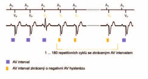 Negativní AV-hystereze. Detekce spontánního síňokomorového vedení (spontánní komorové depolarizace uvnitř AV-intervalu) vede ke zkrácení AV-delay. Po programovaném počtu intervalů s trvající komorovou stimulací je AV-delay prodloužen na původní hodnotu. (zdroj: Biotronik Philos II. Výukový materiál)