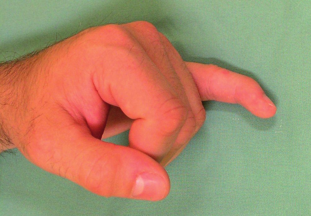 Typický klinický nález – semiflexe v distálním interfalangeálním kloubu.