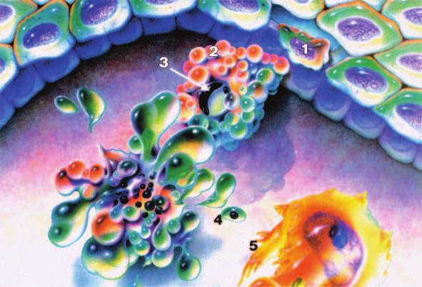 Morfologické změny při apoptóze – svraštění buňky (1), vyčlenění buňky a ztráta mezibuněčných kontaktů (2), kondenzace jaderného chromatinu (3), fragmentace na apoptotická tělíska (4), fagocytóza jinými buňkami (5).