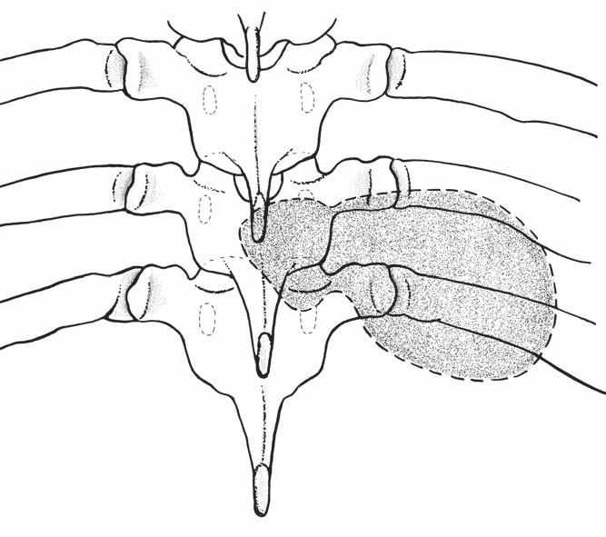 Nákres sutkovitého nádoru hrudní páteře (předozadní pohled). Fig. 1. Drawing a dumbbell-shaped tumor of the thoracic spine (antero-posterior view).