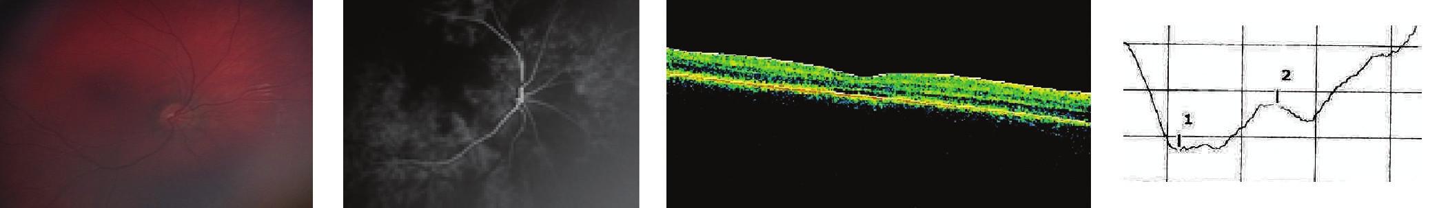 Totálna achromatopsia 3a Oftalmoskopický nález, 3b Nález na FAG, 3c Obraz OCT, 3d Fotopický záznam ERG