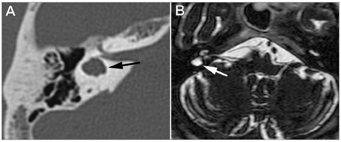 Obr. 2 a,b. Axiální zobrazení postiženého labyrintu. A. HRCT axiální řez pravou pyramidou. HRCT zobrazuje dysplastický labyrint s chybějícím laterálním semicirkulárním kanálkem (označen šipkou) – rozdělení malformací laterálního kanálku dle HRCT viz [12]. B. MRI T2 vážený axiální řez vnitřním uchem a mozečkem. Vpravo je atypický horizontální semicirkulární kanálek (označen šipkou), chybí vnitřní stěna kanálku a je vytvořena ohraničená dutina vyplněná tekutinou, která se nechová expanzivně. Ostatní kanálky bilaterálně i hlemýžď mají normální morfologii.