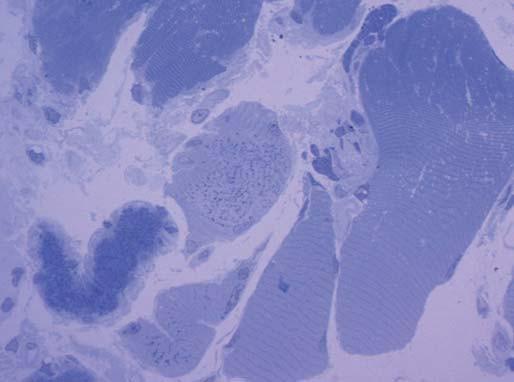 V polotenkých plastických řezech barvených toluidinovou modří byla zřetelná přítomnost drobných tmavých tyčinkovitých inkluzí ve většině vláken. Zvětšení 600krát.