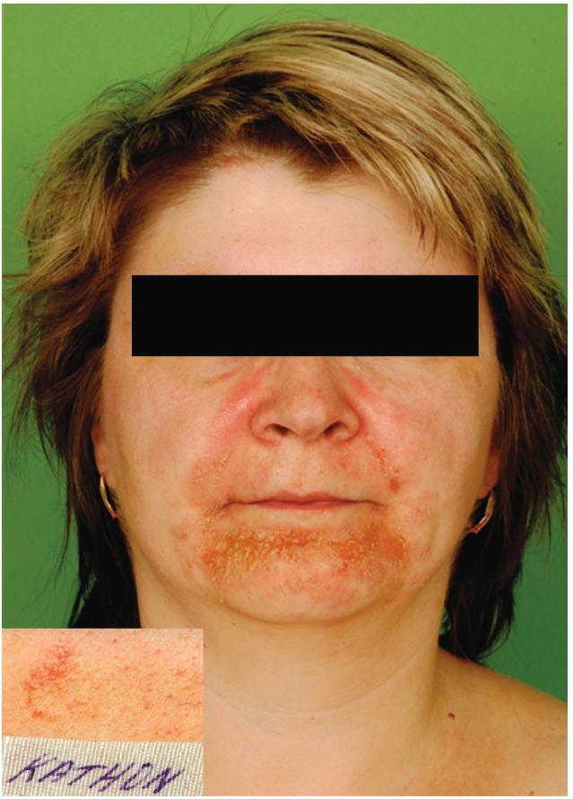 Eczema contactum – Kathon CG (šampony a další) Epikutánní test – alergická reakce na Kathon CG