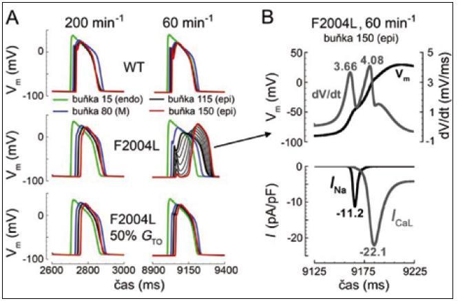 Blokáda šíření vzruchu srdečním vláknem v přítomnosti mutace <i>I<sub>Na</sub></i>-kanálu F2004L při stimulační frekvenci odpovídající obvyklé klidové srdeční frekvenci u člověka (A). Šíření vzruchu závislé na I<sub>Na</sub>, které bylo přerušeno na úrovni epikardu, pokračovalo se značným časovým odstupem díky aktivaci I<sub>Ca-L</sub> (B). S dovolením převzato a upraveno z citace [68].