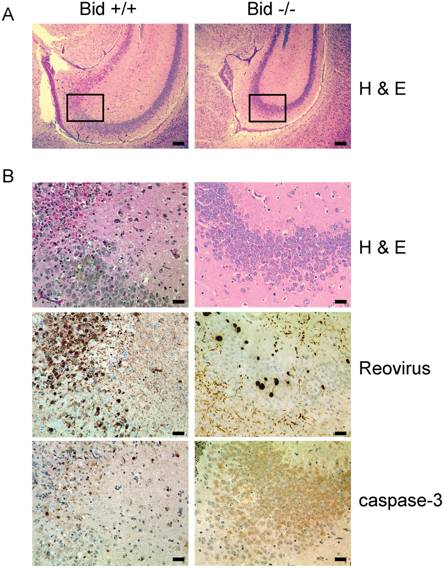 Reovirus-induced histopathologic injury is diminished in the CNS of Bid-deficient mice.