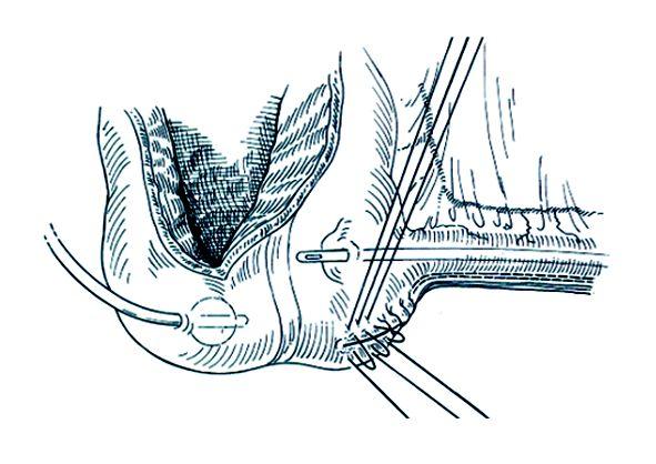 Plikace ileocékální chlopně 5–7 Lembertovými stehy. Stehy blíže céka jsou širší než stehy směrem k eferentní větvi. Po dotažení stehů svírá eferentní větev se stěnou céka úhel 90°. Při zavádění katétru F18 je mírný odpor. Těsnost chlopně a správnou kontinenci dosáhneme uvolněním nebo přidáním stehů.