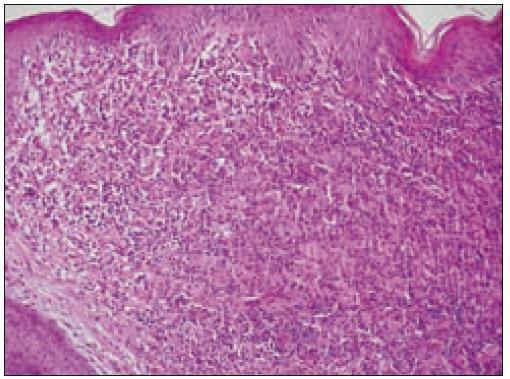 Kožný histiocytóm (HE, 10krát).