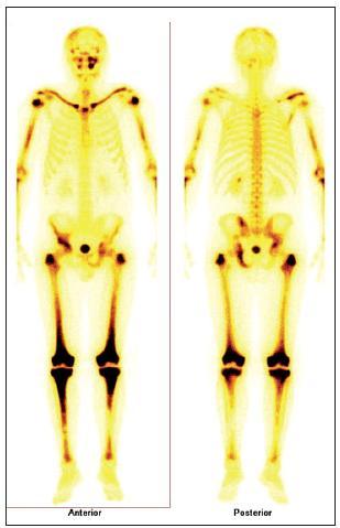 Scintigrafie skeletu u pacienta s Erdheimovou-Chesterovo u chorobou. Scintigrafie skeletu: zvýšená aktivita radiofarmaka je vidět hlavně ve dlouhých kostech – oba humery ve střední třetině, v distálních částech obou femorů, v proximálních částech obou tibií, v obou klavikulách, v oblasti pánve – os ischii vlevo, os pubis vpravo, os ilium vpravo, v oblasti levého SI skloubení, dále v oblasti maxily vlevo, difuzně vyšší aktivita v oblasti kalvy s ložisky vpravo parietálně a částečně frontálně bilat.