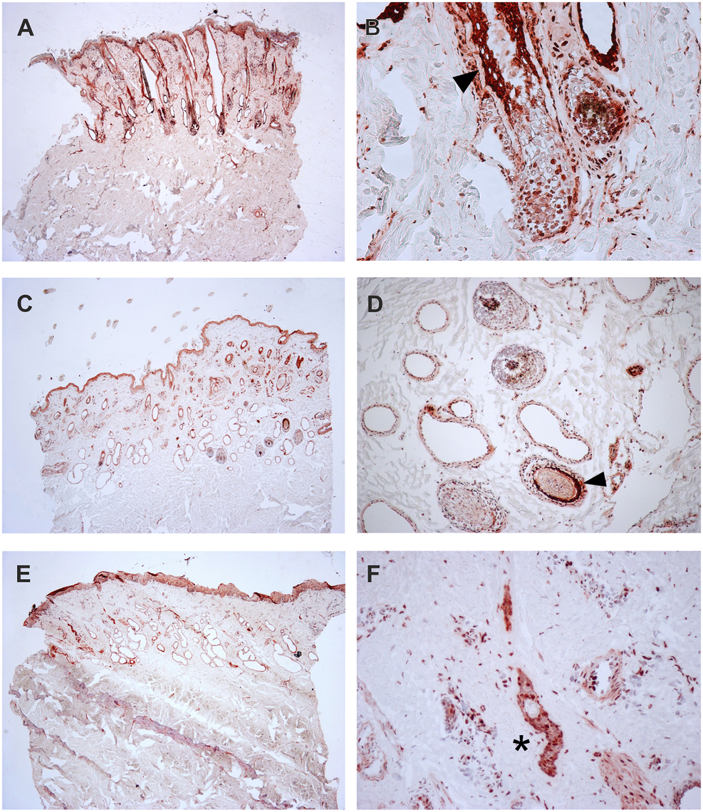 Expression of TSR2 protein in adult bovine skin.