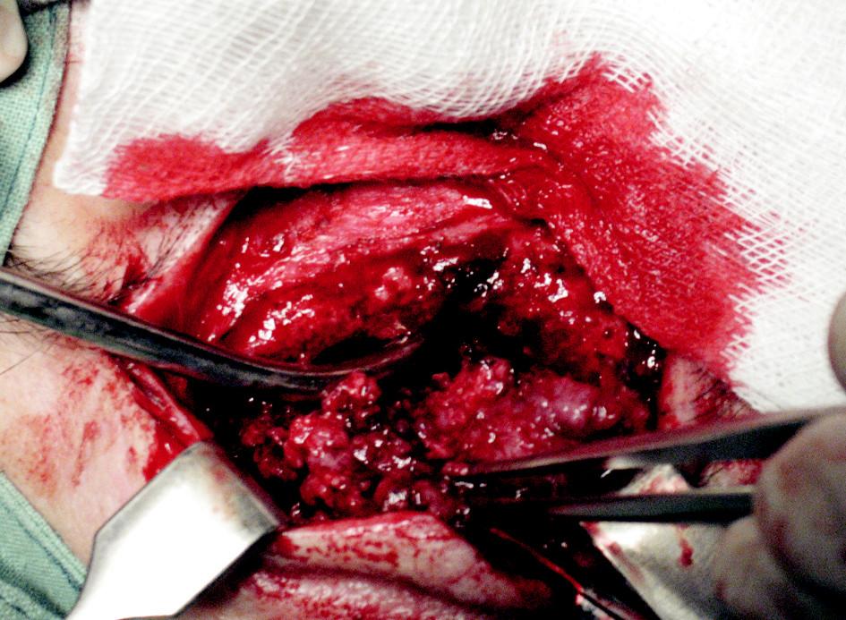 Zevní přístup k čelní dutině (řez veden oboustranně v obočí, na snímku pravá strana). Nádorové hmoty vyplňují celou frontální dutinu a pronikající dopředu přes přední stěnu dutiny.