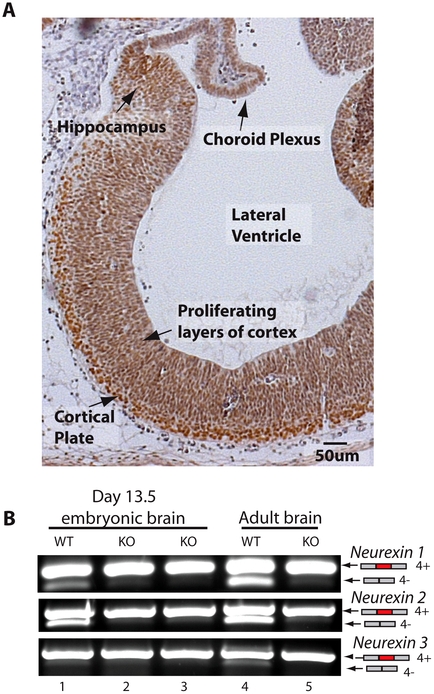 T-STAR protein is expressed in the embryonic brain.