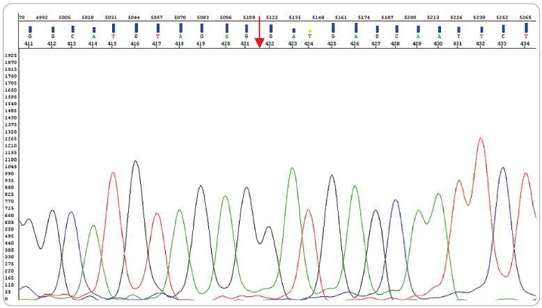 Sekvenačný elektroforegram MLL PTD znázorňujúci zlom exón8/exón2 (exón3/exón11). exón 8 exón 2.