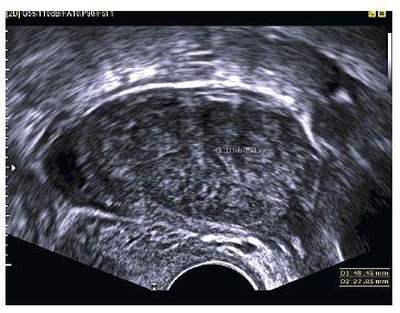Podlouhlý útvar s heterogenním obsahem (v.s. koagula) rozměrů 48,45×27,85 mm odstupující od pravého děložního rohu (při použití barevného dopplerovského mapování)  – graviditas extrauterina tubaria
