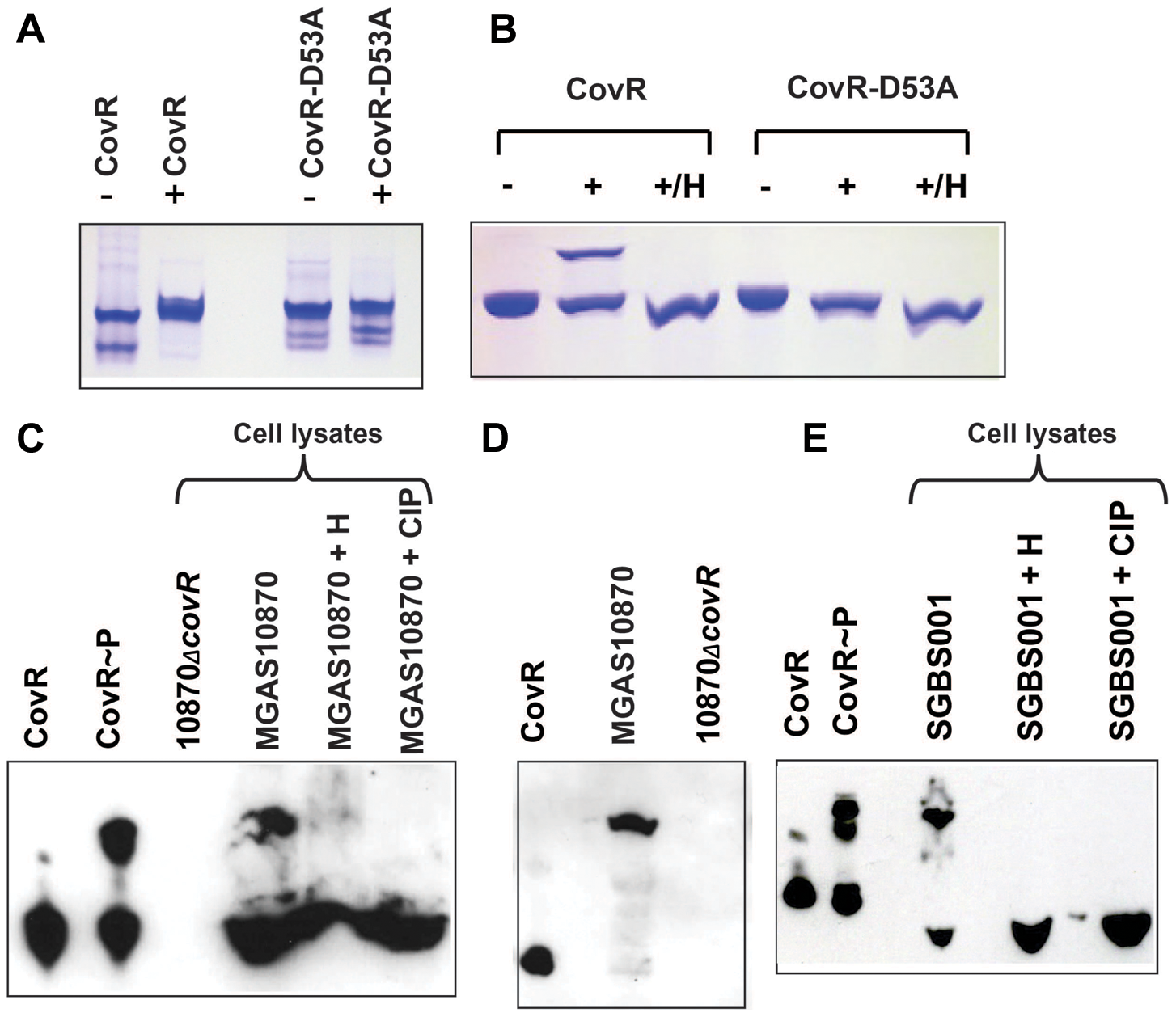 Detection of CovR phosphorylation <i>in vitro</i> and <i>in vivo</i>.