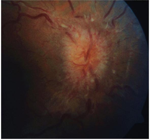 Terč zrakového nervu při prvním vyšetření na pravém oku