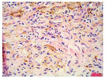 Obr. 5d. Pigmentované melanocyty sekundární komponenty vřetenitého tvaru