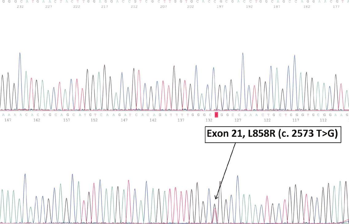 Papilární karcinom plic (A). Mutační status DNS (B).