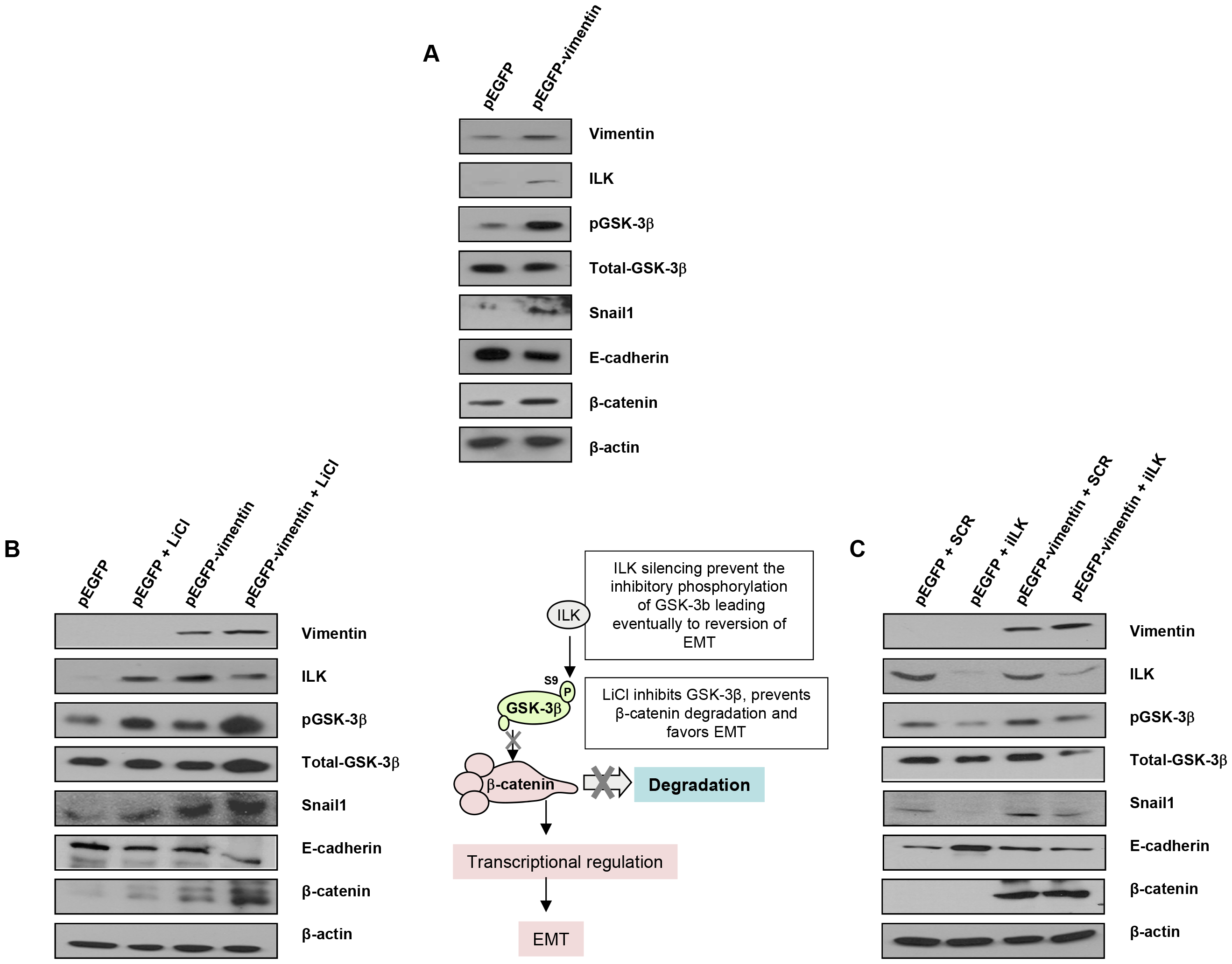 Interaction between vimentin over-expression and the activation of EMT signaling pathway.