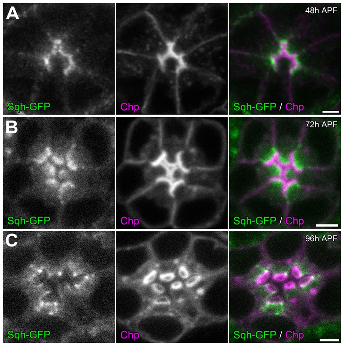 Sqh localization during retinal lumen formation.
