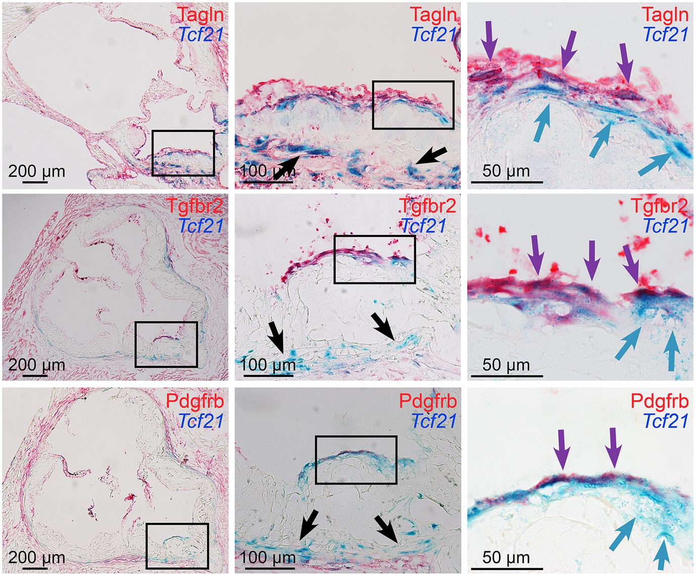<i>Tcf21</i> expressing cells associate with the fibrous cap.