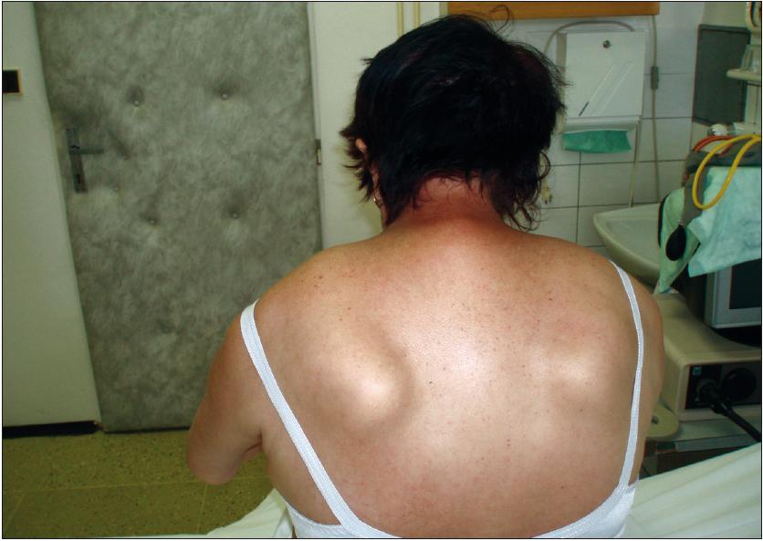 Porucha fixace lopatek a slabost šíjového svalstva.