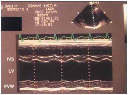 M-mode pacienta s dlouhotrvající těžkou stenózou aorty spojenou s omezením systolické a diastolické funkce komory. Levá komora je zvětšená a hypertrofická. Frakce systolického zkrácení je pod 30 % a rychlost diastolického plnění snížená.