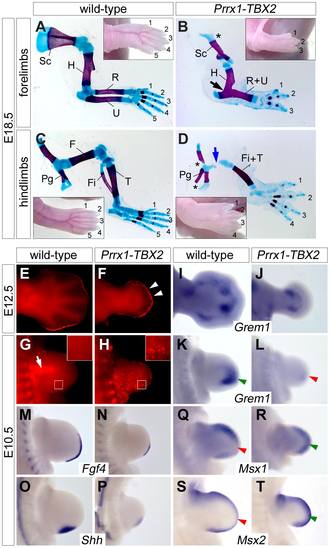 Ectopic Tbx2 represses <i>Grem1</i> and disrupts e-m signaling in the limb.