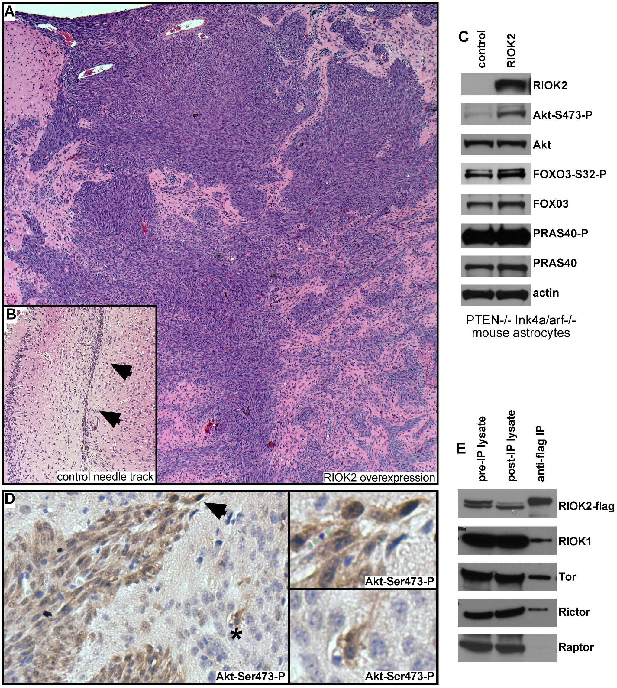 Overexpression of RIOK2 in murine astrocytes promotes tumorigenesis and TORC2-Akt signaling.