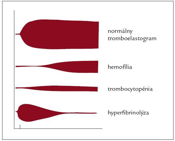 Náčrt normálneho tromboelastogramu a niektorých typických porúch koagulácie zachytených pri TEG (zdroj – obrazové materiály firmy Biovendor).