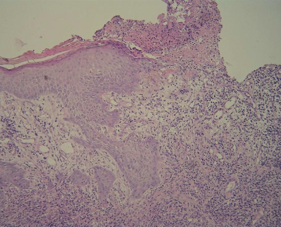 Akantotická epidermis přechází ve spodinu mělkého vředu (HE, orig. zvětšení 100x) (doc. MUDr. L. Pock).