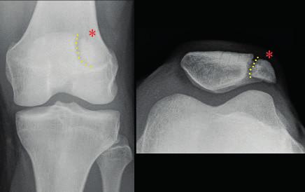 RTG snímek pately bipartity – dělení pately a volný fragment vyznačeny. Fig. 3. X-ray of bipartite patella – the free patellar fragment separation marked.