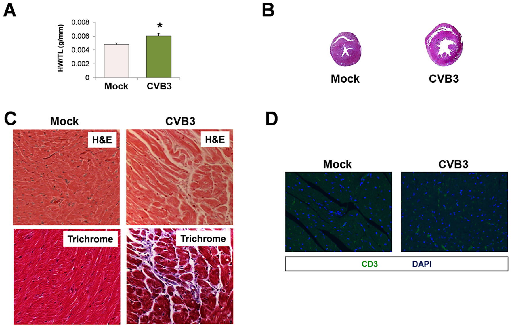 Exercise-induced cardiac hypertrophy in adult mice infected with CVB3 at an early age leads to dilated cardiomyopathy.