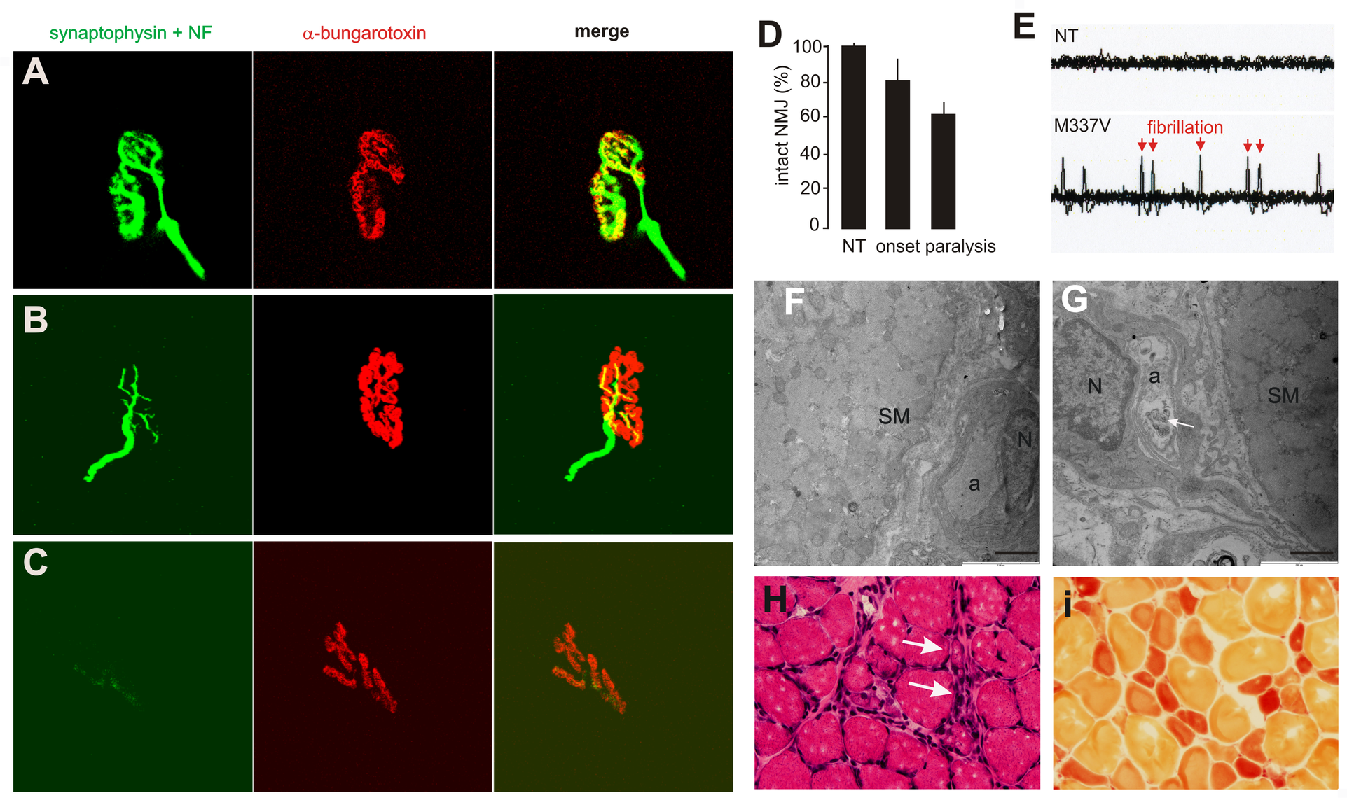 Denervation atrophy of skeletal muscle in transgenic rats expressing a mutant human <i>TDP</i> gene.