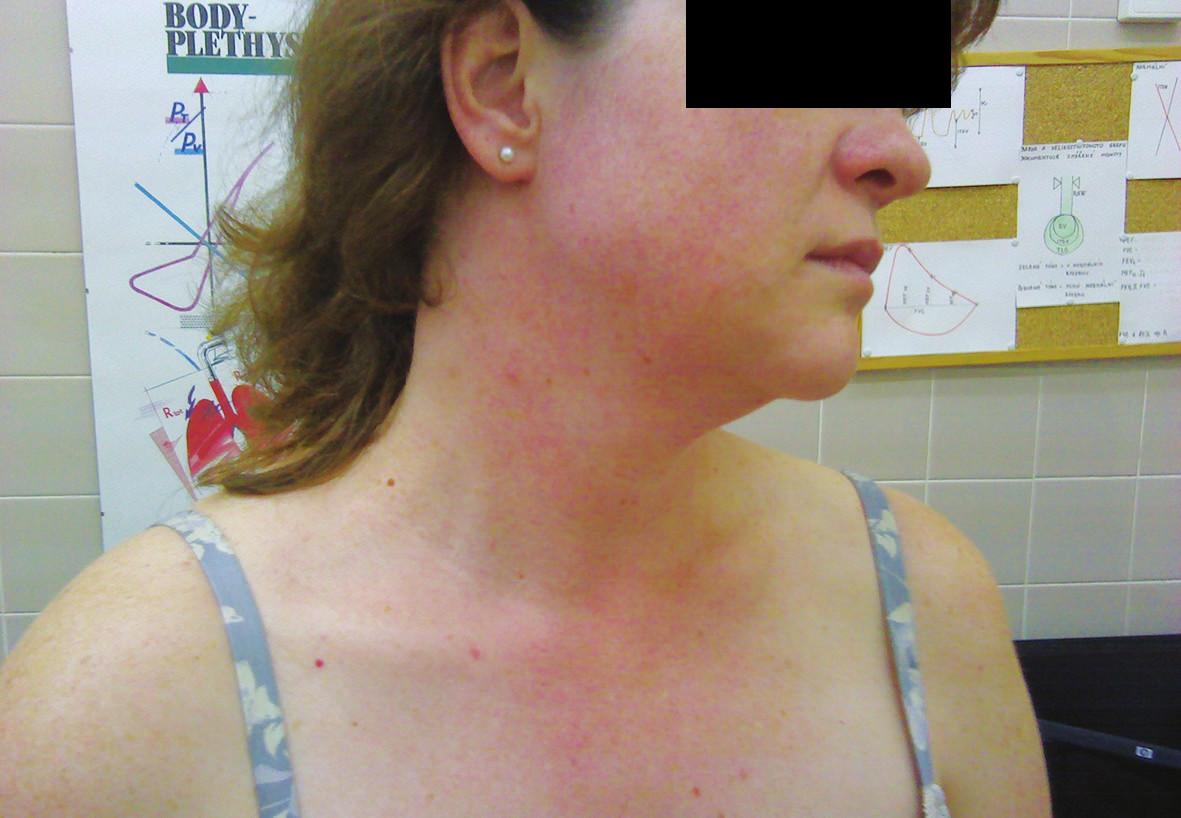 Snímek erytému na krku a v obličeji po provedení expozičního testu