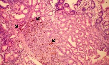 Solidní struktura metastázy maligního melanomu s depozity tmavého pigmentu (melaninu) ve sliznici duodena – označeno šipkami (klešťová biopsie, barvení hematoxylin-eozin, zvětšeno 100×). Fig. 2. A metastatic mass of malignant melanoma with melanin pigment deposits in the duodenal mucose – marked with arrows (forceps biopsy, hematoxylin-eosin staining, enlarged 100×).