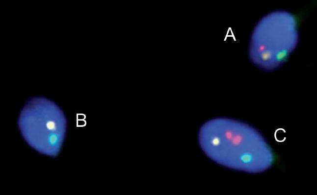 FISH u pacienta s reciprokou translokací. Spermie normální/balancované (A) a nebalancované (B, C).