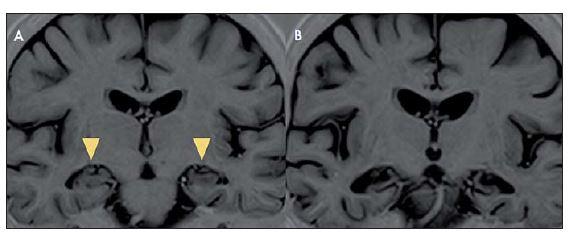 Vývoj MR obrazu limbické encefalitidy v čase.