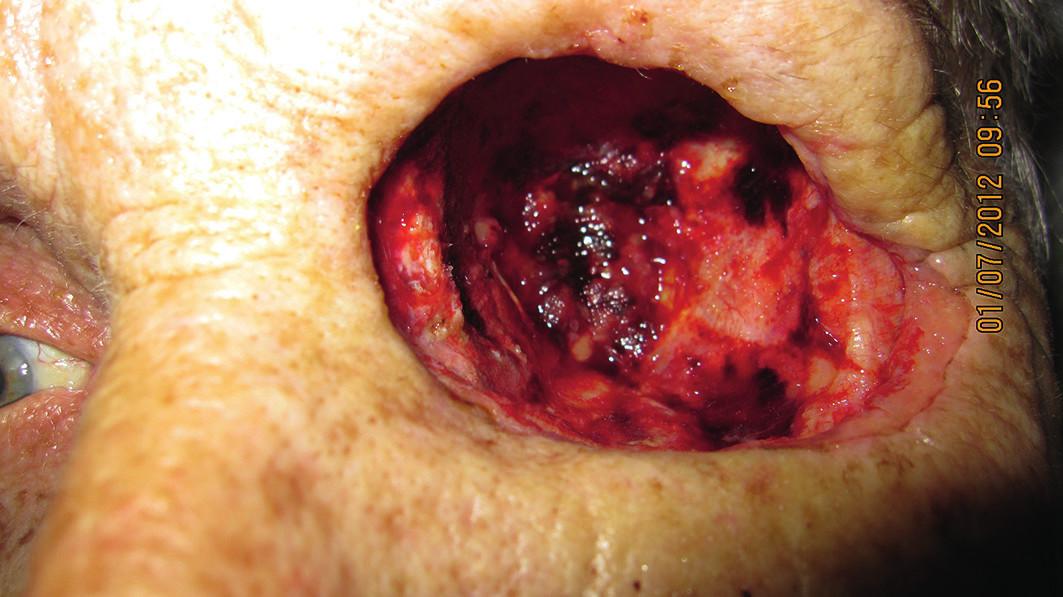 Dutina očnice 1 mesiac po exenterácii (7/2012)