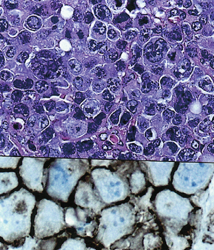 (a). Difuzní velkobuněčný B lymfom, anaplastická varianta. (HE, 400krát) (b). Pozitivní nález s protilátkou CD20. (400krát)