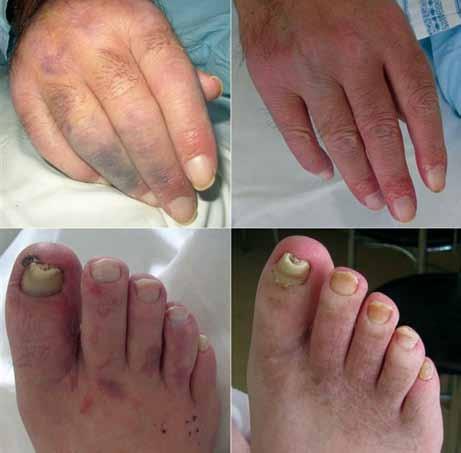 Kožní projevy u pacienta v průběhu léčby režimem R-CHOP uzavřeny jako vaskulitida při základní diagnóze (fotografie vlevo). Reziduální hyperpigmentace je patrná na chodidlech (obrázky vpravo pořízeny s odstupem 1 roku).