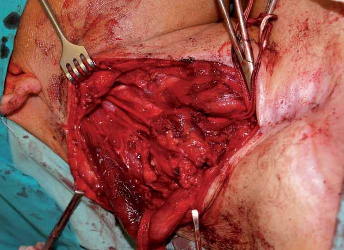 Operační pole před výkonem. 1 – n. hypoglossus, 2 – n. vagus, 3 – a. carotis interna, 4 – tumor, 5 – m. sternocleidomastoideus, 6 – větve cervikálního plexu.