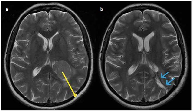 Meningiom trigona levé postranní komory – (a) předoperační MR s vyznačenou plánovanou trajektorií (žlutě), (b) šipkami označená použitá přístupová cesta na časné pooperační MR (modře). Fig. 2. Meningioma of the left lateral ventricle – (a) preoperative T2-weighted MRI showing planned surgical trajectory (yellow), (b) early postoperative T2-weighted MRI showing surgical approach (blue).
