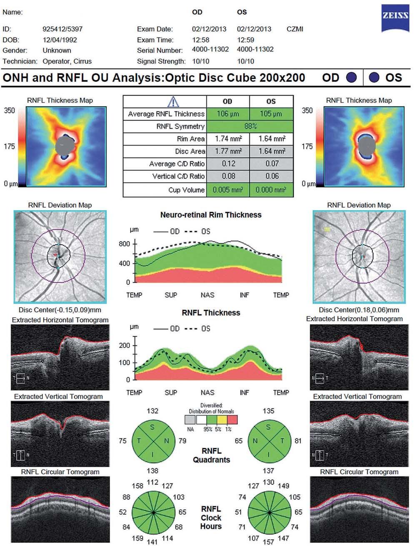 Vyšetření vrstvy nervových vláken (Retinal Nerve Fibre Layer; RNFL) a terče zrakového nervu – fyziologický nález (Cirrus OCT HD).
