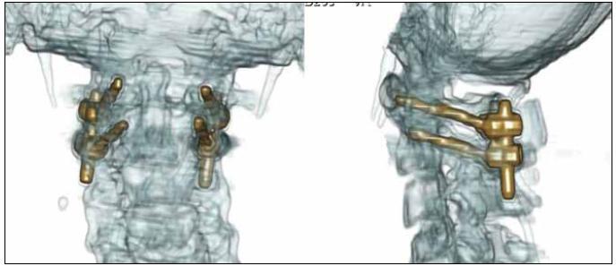 3D CT rekonstrukce po stabilizaci C1/C2 technikou polyaxiálních šroubů a tyčí dle Harmse et al s naložením kostního štěpu mezi oblouky C1/C2, pooperační kontrola.