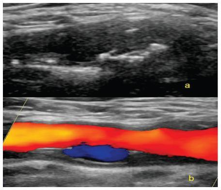 Exulcerovaný plát v bifurkaci karotid v ultrasonografickém obrazu – zobrazení v B-modu (a), zobrazení v barevném modu (b)
