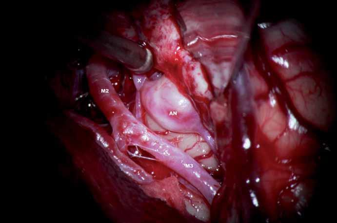 Aneuryzma je spojeno širokým krčkem s mateřskou tepnou. Vlastní fundus je kryt temporálním operkulem. AN – aneuryzma, x – přítoková část tepny, y – odtoková část tepny, M2 – větev a. cerebri media, M3 – větev a. cerebri media distální.