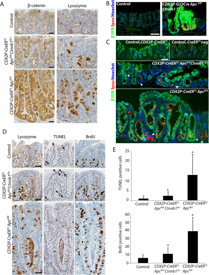 Inactivation of a <i>Ctnnb1</i> allele in mouse colon epithelium reduces apoptosis and hyperproliferation induced by bi-allelic <i>Apc</i> inactivation, and also reduces, but does not abrogate, the aberrant cell differentiation associated with <i>Apc</i> inactivation.