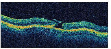 OCT nález diery makuly s pseudooperkulom v štádiu II u pacienta č. 1 v deň operácie katarakty